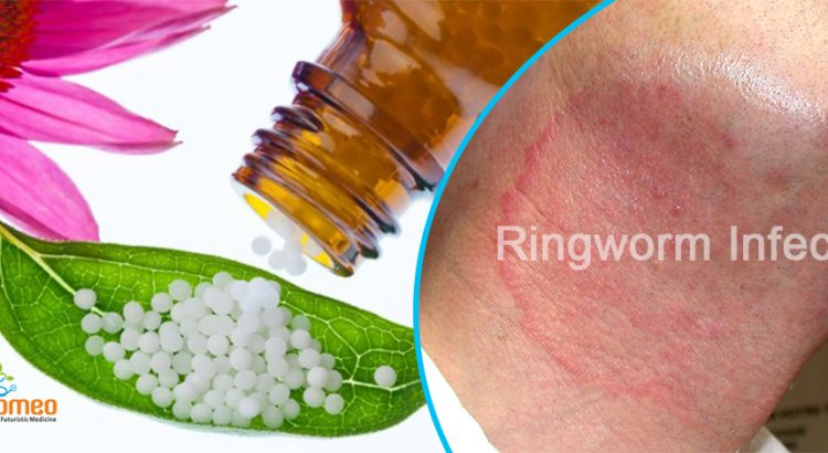 Ringworm Infection
