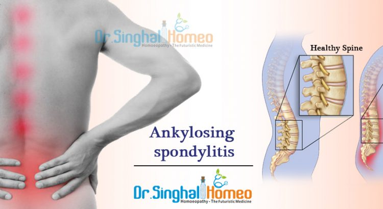 Homeopathic Medicine for Ankylosing spondylitis