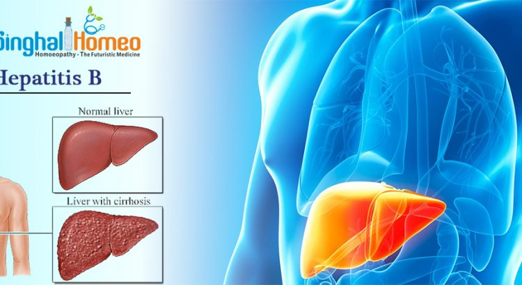 Homeopathy Treatment for Hepatitis B