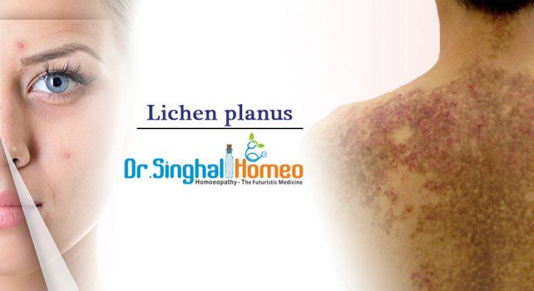Lichen-planus2