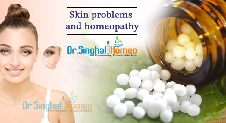 Homeopathic Treatment for Skin Problems