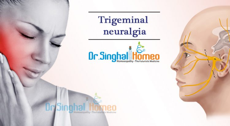Homeopathy Treatment for Trigeminal Neuralgia