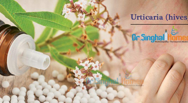 Urticaria-hives2