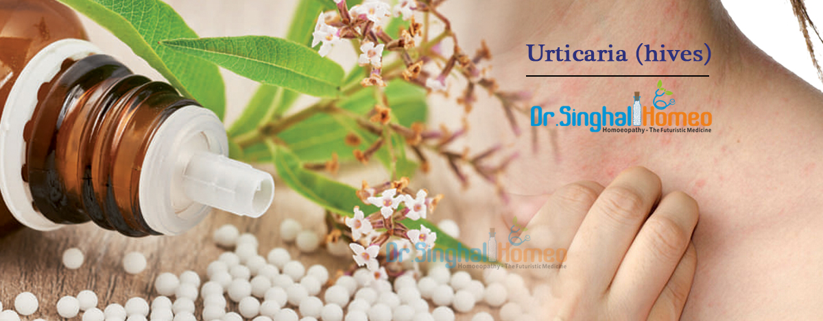 Homeopathic Treatment for Urticaria (hives)