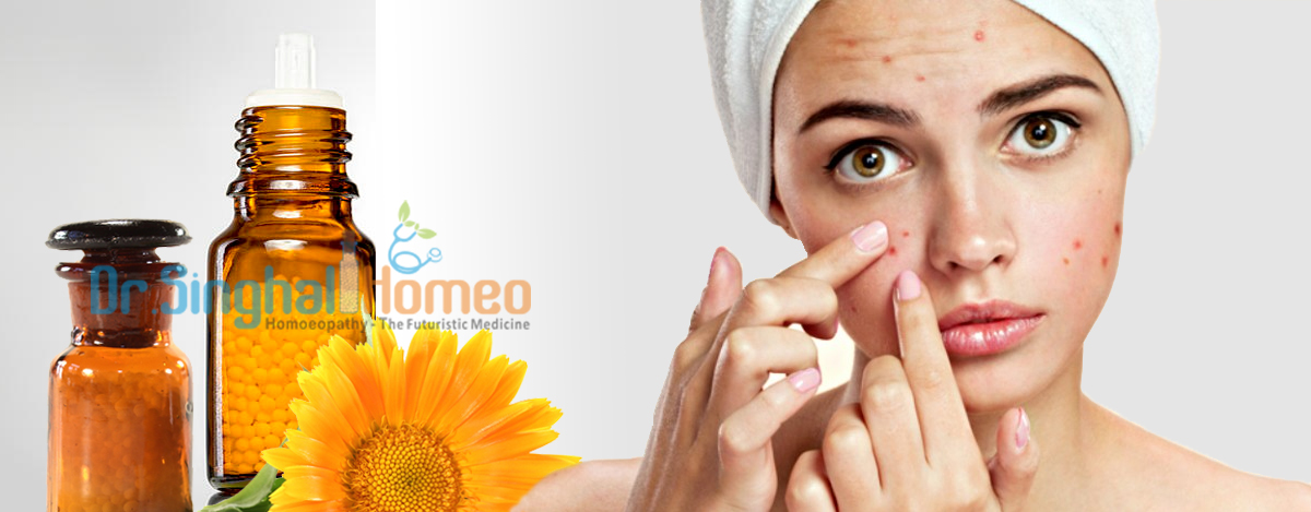 Homeopathy acne treatmnent