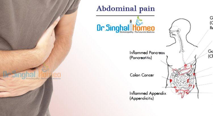 Abdominal-pain2