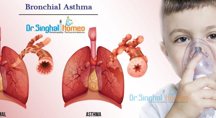 Bronchial-asthma1