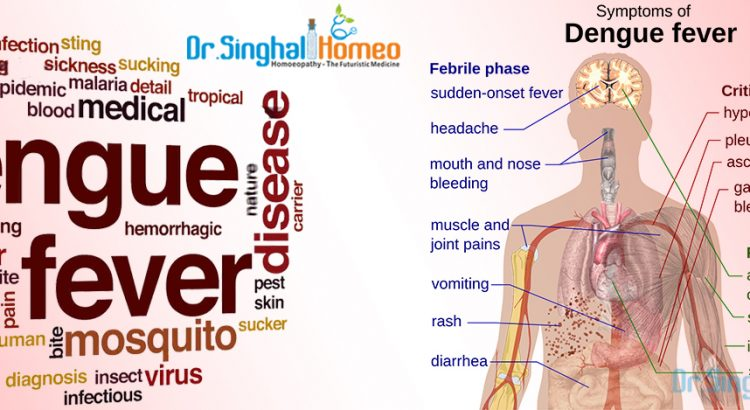 Treatment for Dengue Fever