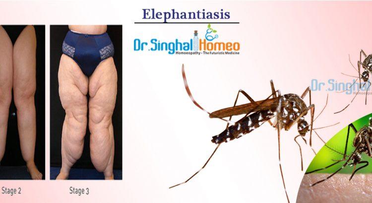Elephantiasis1
