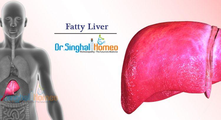 Fatty-Liver1