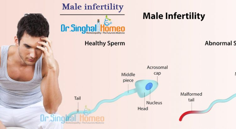 Male-infertility2-1