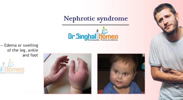 Nephrotic-syndrome2