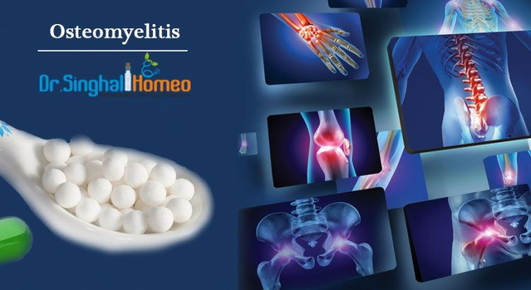 Homeopathic Treatment for Osteomyelitis | Dr  Singhal Homeo