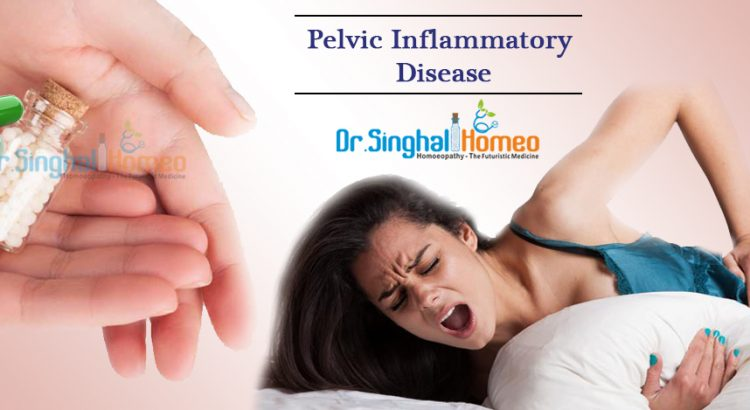 Homeopathic Treatment for Pelvic Inflammatory | Dr  Singhal