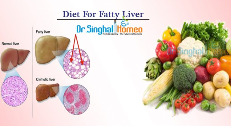 diet_for_fatty_liver1