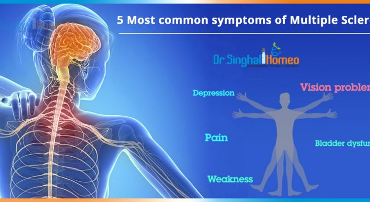 5-Most-common-symptoms-of-Multiple-Sclerosis