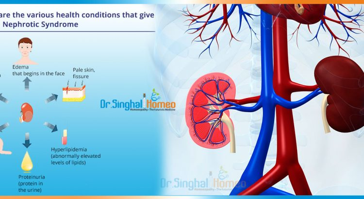 Nephrotic-Syndrome-1