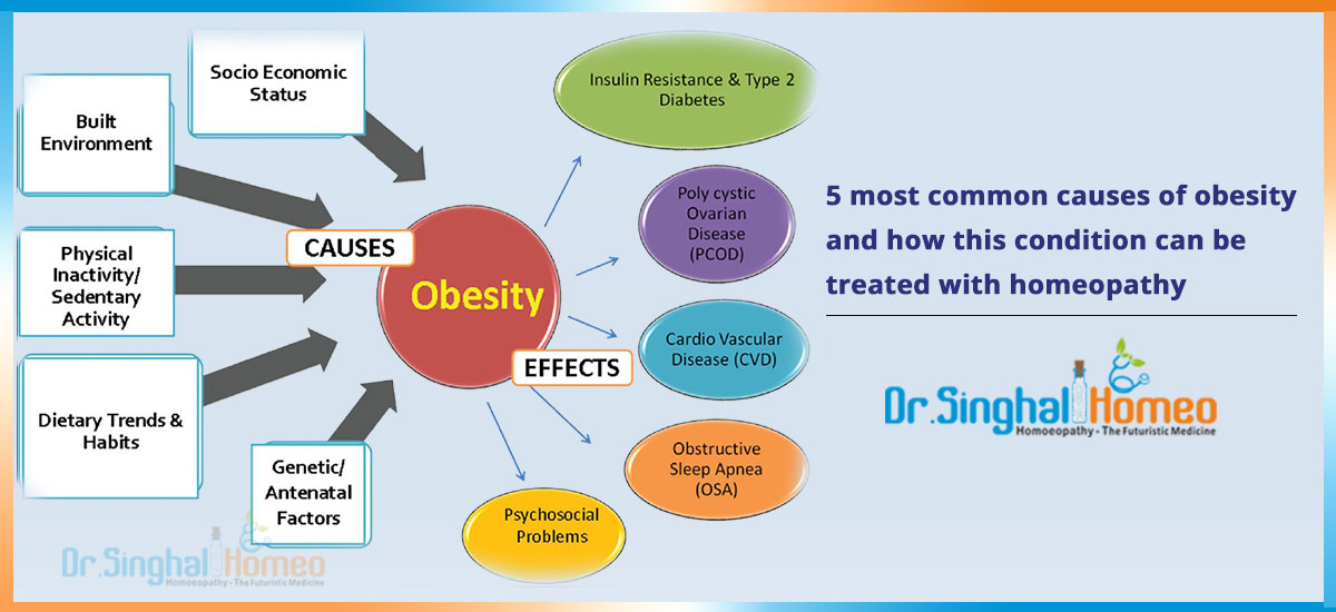 Causes Of Obesity and Homeopathic Treatment