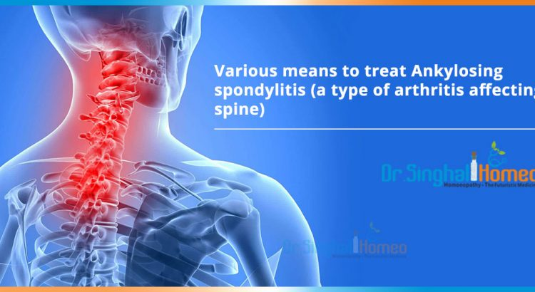 Various-means-to-treat-Ankylosing-spondylitis-a-type-of-arthritis-affecting-spine