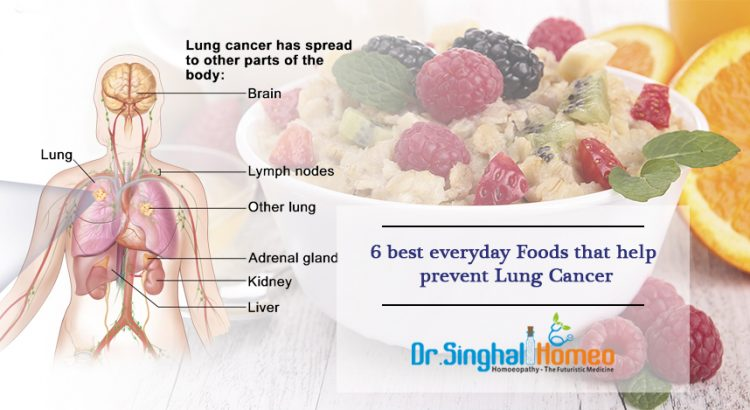prevent-Lung-Cancer1
