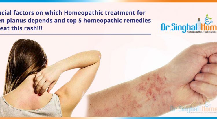 4-crucial-factors-on-which-Homeopathic-treatment-for-lichen-planus-depends2
