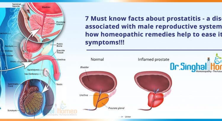 7-Must-know-facts-about-prostatitis2