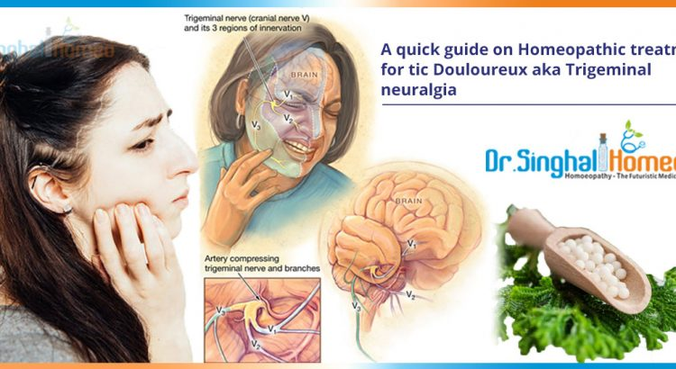 A-quick-guide-on-Homeopathic-treatment-for-tic-Douloureux-aka-Trigeminal-neuralgia2