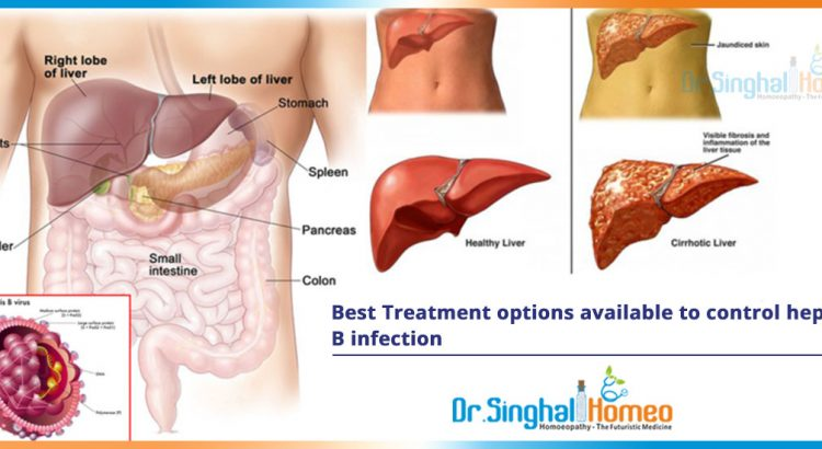 Best-Treatment-options-available-to-control-hepatitis-B-infection2