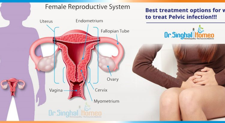 Best-treatment-options-for-women-to-treat-Pelvic-infection2