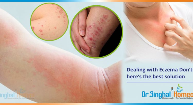 Dealing-with-Eczema-Don't-worry-here's-the-best-solution2