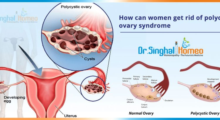 How-can-women-get-rid-of-polycystic-ovary-syndrome