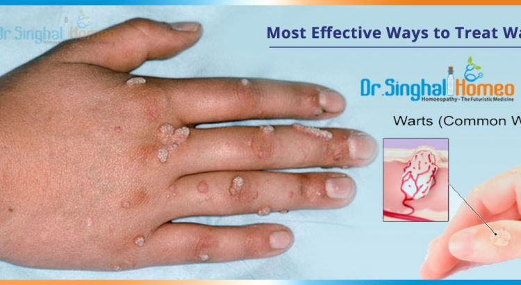 Most-Effective-Ways-to-Treat-Warts2