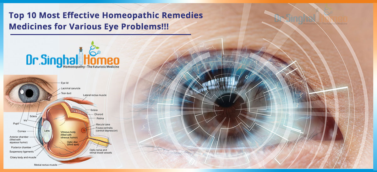 Top 10 Most Effective Homeopathic Remedies/ Medicines For