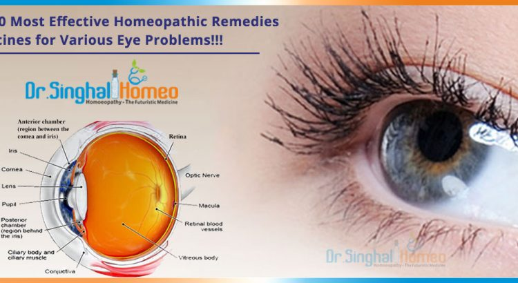 Top-10-Most-Effective-Homeopathic-Remedies-Medicines-for-Various-Eye-Problems
