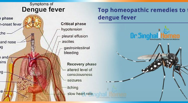 Top-homeopathic-remedies-to-treat-dengue-fever2