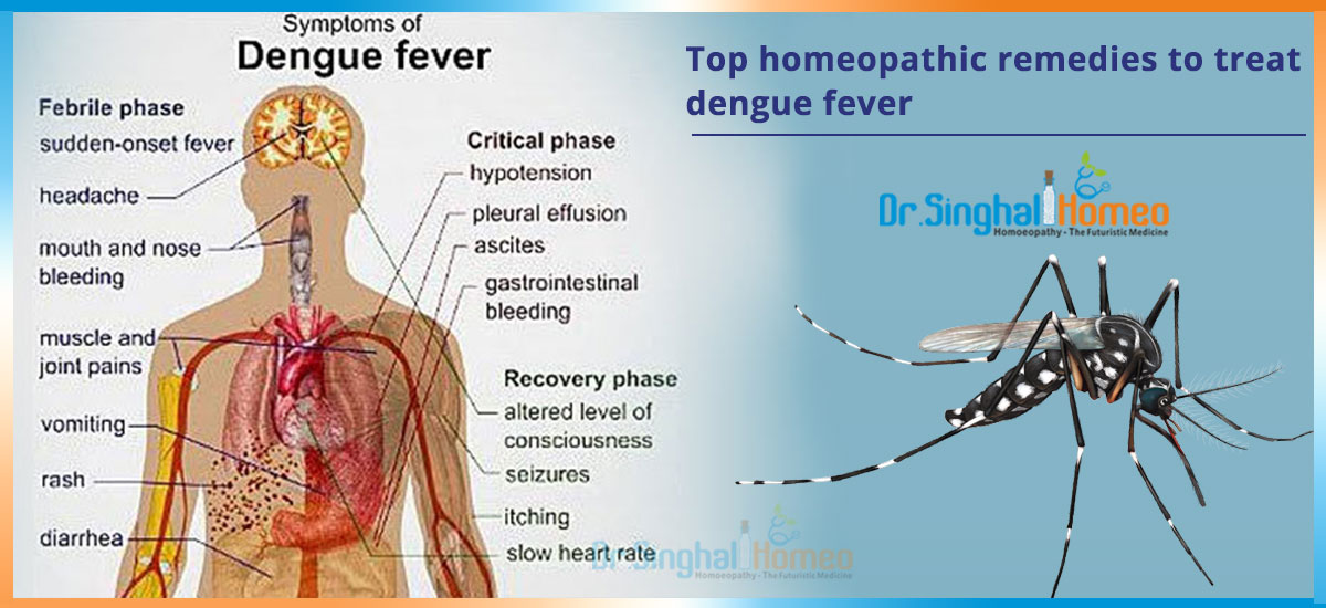 Top Homeopathic Remedies To Treat Dengue Fever