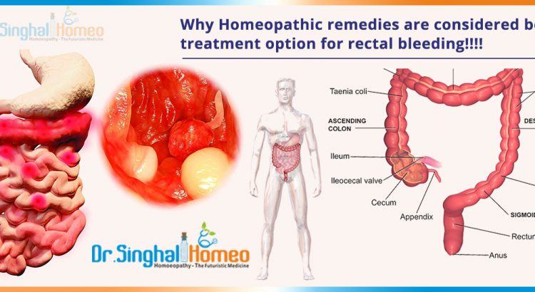 Why-Homeopathic-remedies-are-considered-best-treatment-option-for-rectal-bleeding