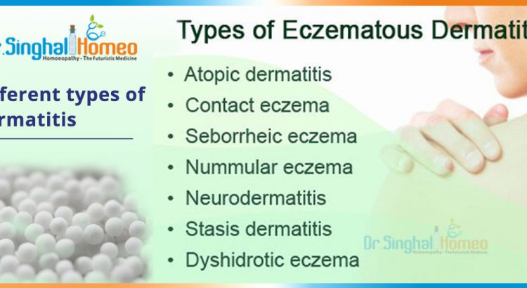 Different-types-of-Dermatitis