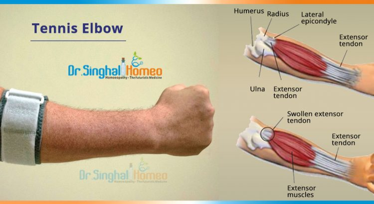 TENNIS-ELBOW-2