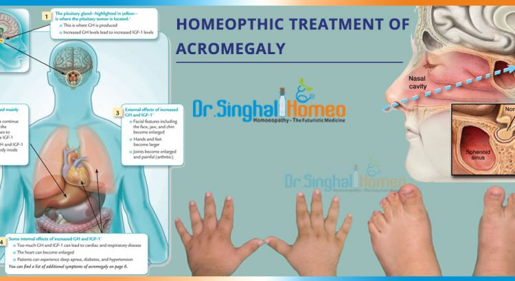 acromegaly-2