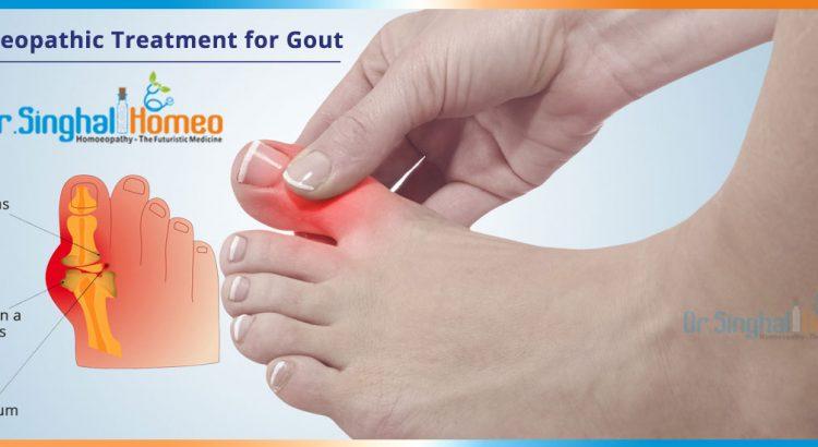 gout-2