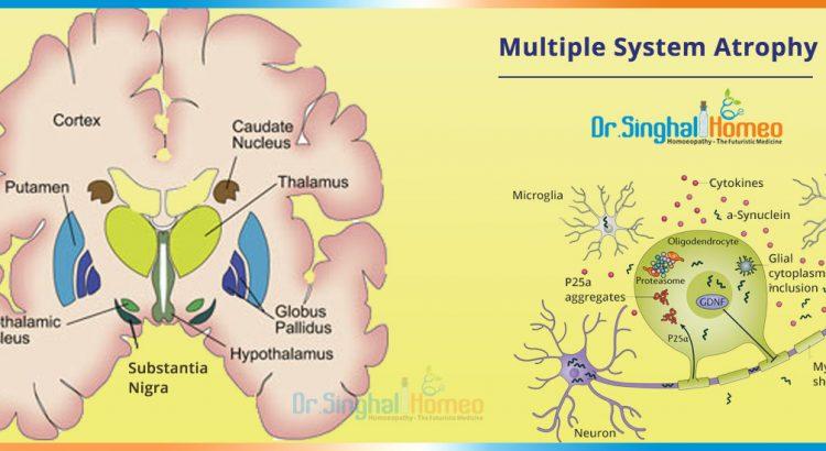 multiple-system-Atrophy-2