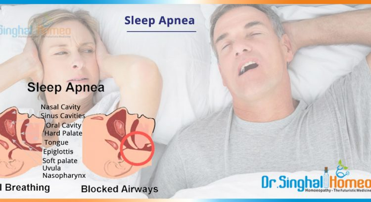 sleep-apnea-2