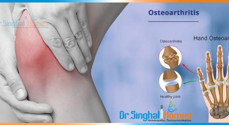 Osteoarthritis-2