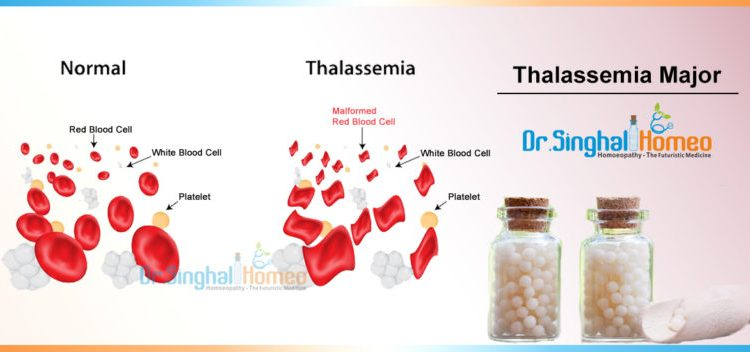 Thalassemia-Major-1