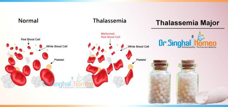 Thalassemia-Major-1