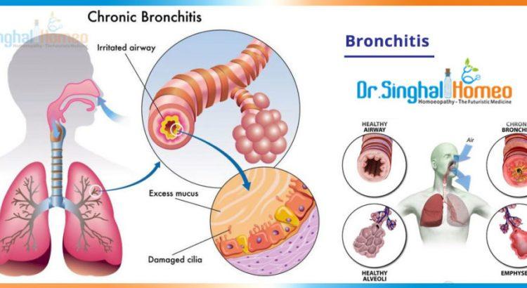 bronchitis-2