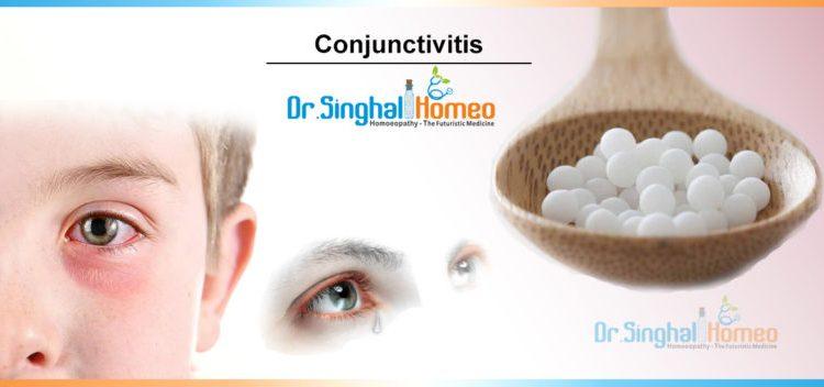 conjunctivitis-2