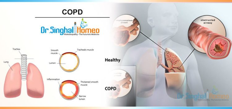 copd-1