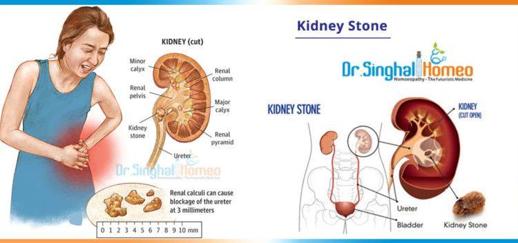 kidney-stone-2